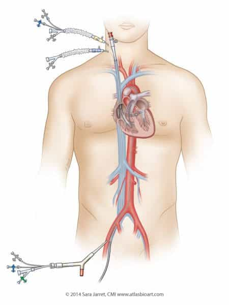 A catheter system provides heart-lung bypass and keeps the heart protected during the procedure.
