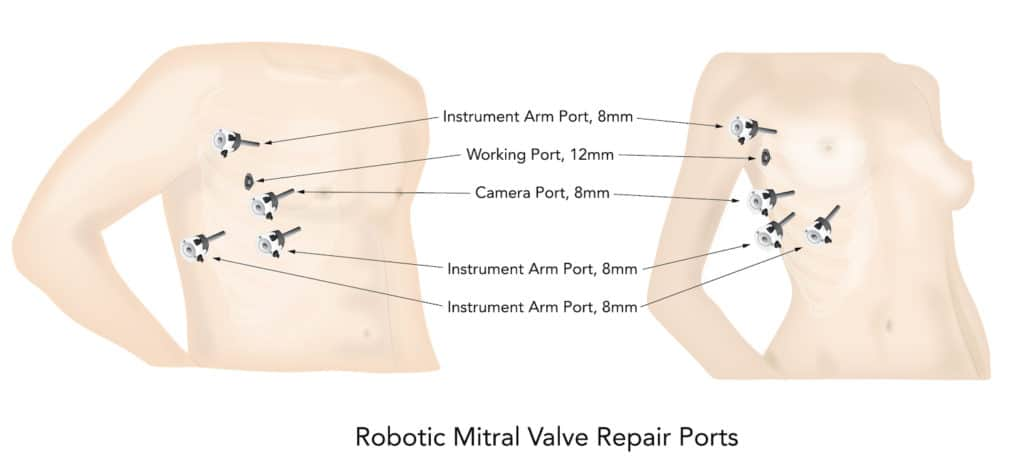 Robotic Mitral Valve Repair Ports